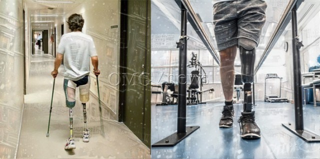 Top 20 Life Changing Inventions from 2016 - Custom-molded prosthetic leg