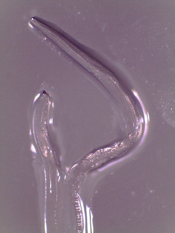 Adult female eye worm immediately after removal from the eye, appears in a handout photo