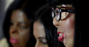 Acid attack survivors wait before the start of a fashion show to mark International Women's Day in Thane on the outskirts of Mumbai