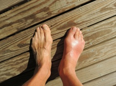 Newer gout drug poses risk to heart patients