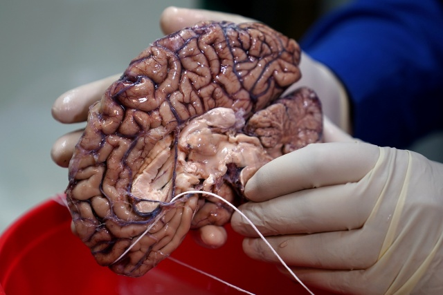 A doctor holds a human brain in a brain bank in the Bronx borough of New York City