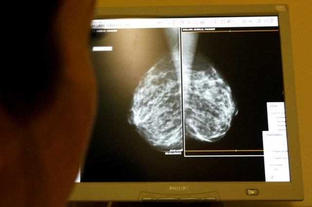 A doctor exams mammograms in Nice