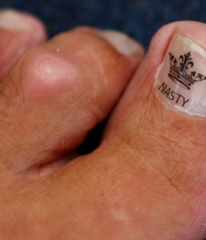 "The toe of Alan ""Nasty"" Nash is seen, as he waits to compete in the World Toe Wrestling championships"