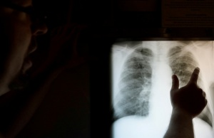 Radiological technician Davis looks at the chest x-ray of retired coal miner Marcum in St. Charles
