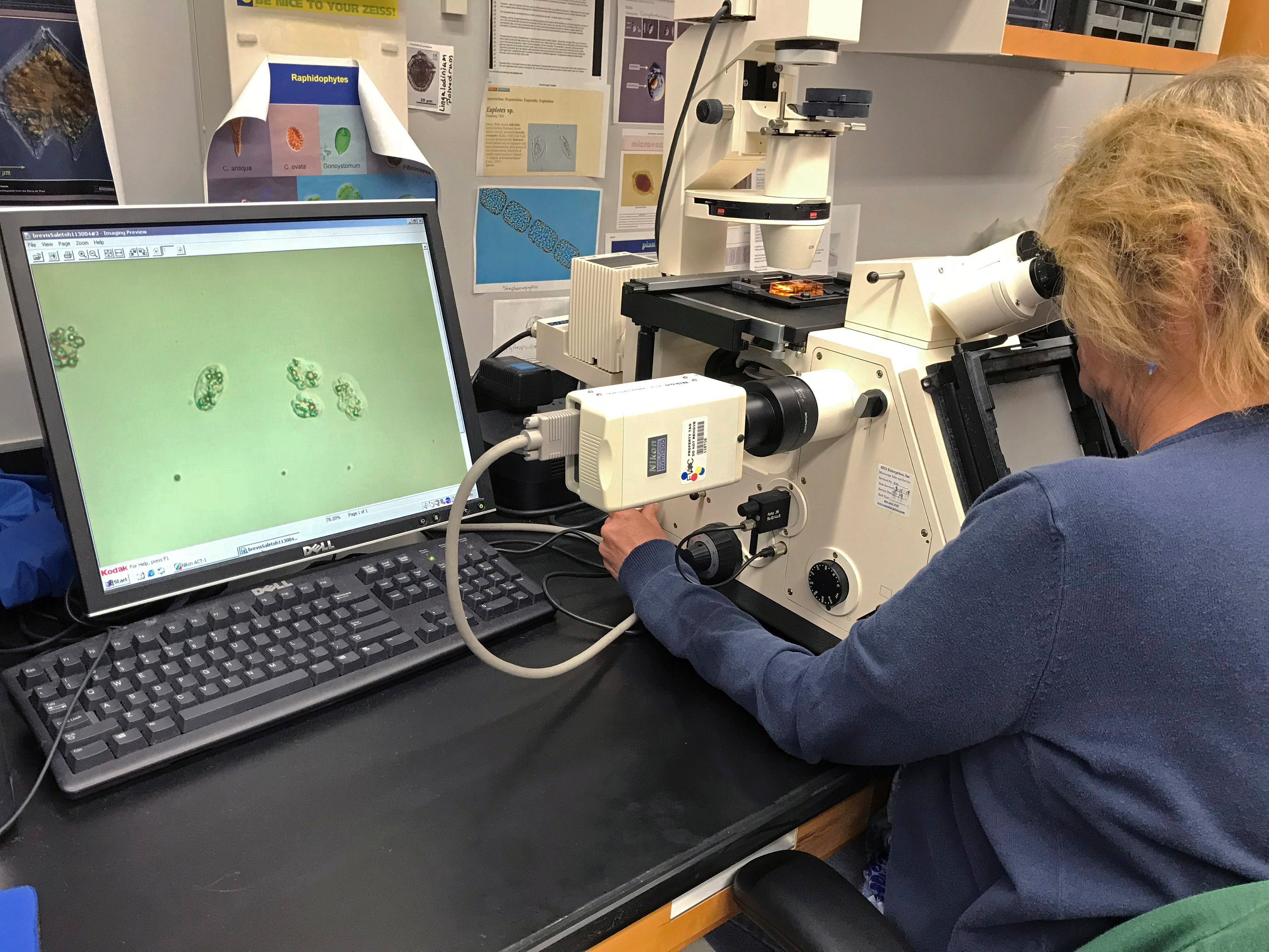 Handout photo of Florida Fish and Wildlife Conservation Commission scientist counting Karenia brevis (red tide) cells