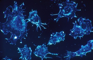 More doctors say men should think twice about prostate cancer screening