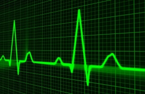 Irregular heart beat tied to increased risk for dementia